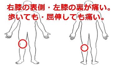 曲げる 痛い の と 裏 膝